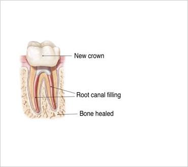 Bone Healed